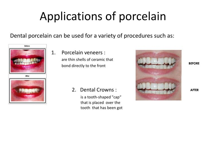 Applications of porcelain