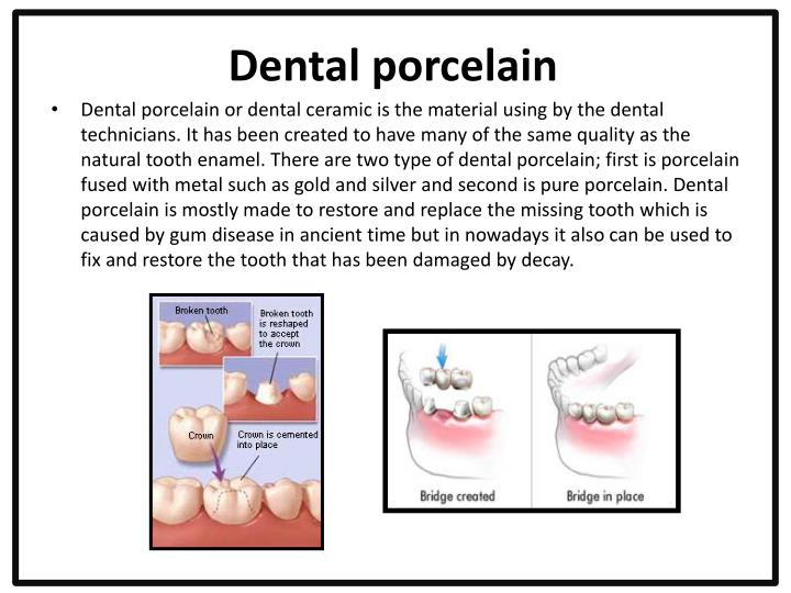 Dental porcelain