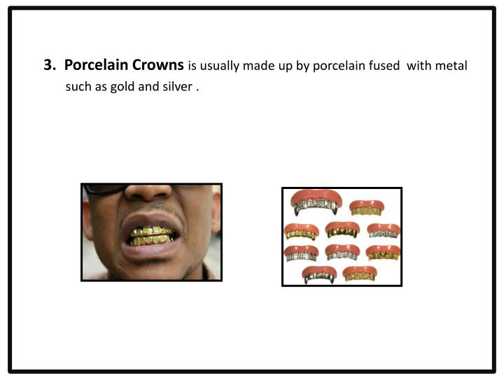 3.  Porcelain Crowns