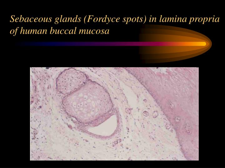 Sebaceous glands (Fordyce spots) in lamina propria of human buccal mucosa