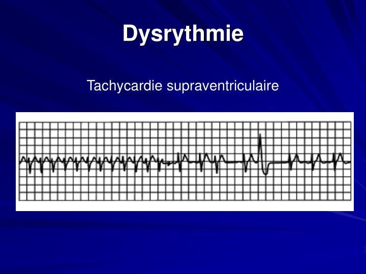 Dysrythmie