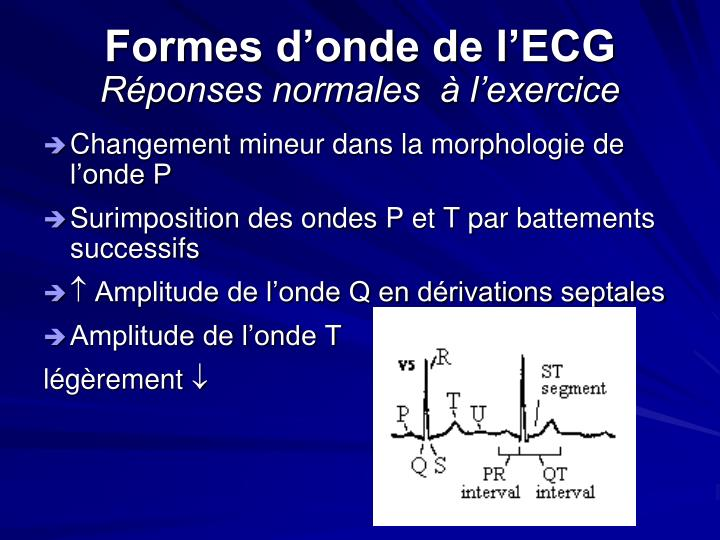 Formes d'onde de l'ECG