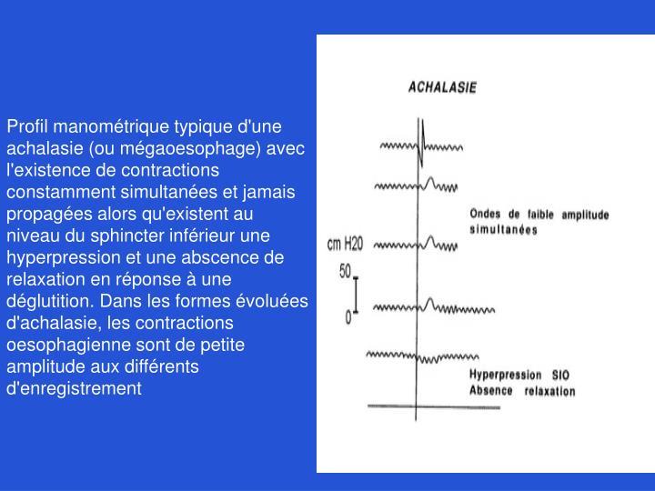 Profil manométrique typique d'une achalasie (ou mégaoesophage) avec l'existence de contractions constamment simultanées et jamais propagées alors qu'existent au niveau du sphincter inférieur une hyperpression et une abscence de relaxation en réponse à une déglutition. Dans les formes évoluées d'achalasie, les contractions oesophagienne sont de petite amplitude aux différents d'enregistrement