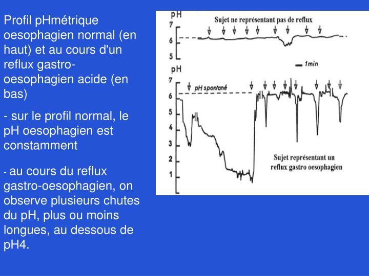 Profil pHmétrique oesophagien normal (en haut) et au cours d'un reflux gastro-oesophagien acide (en bas)
