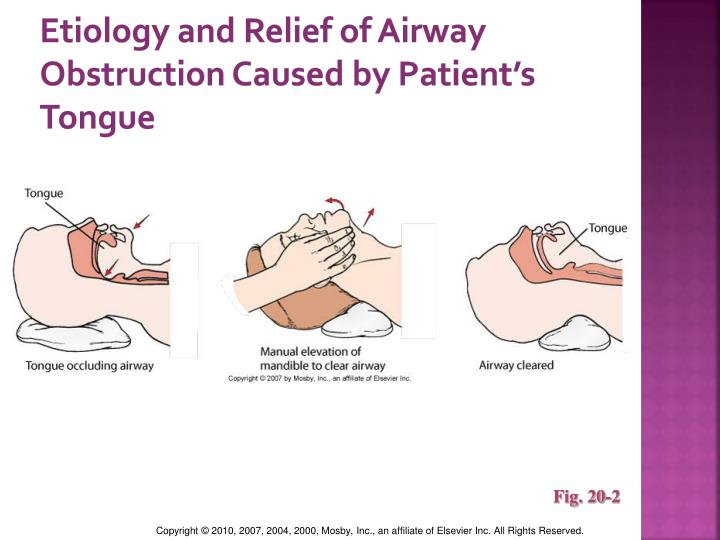 Etiology and Relief of Airway Obstruction Caused by Patient's Tongue