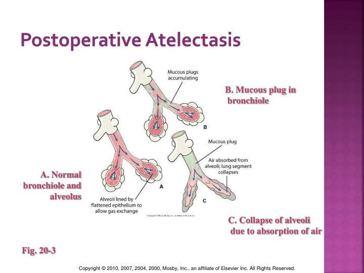 Postoperative Atelectasis