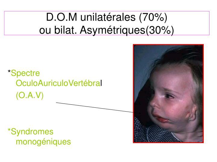 D.O.M unilatérales (70%)