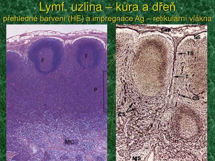 Lymf. uzlina – kůra a dřeň