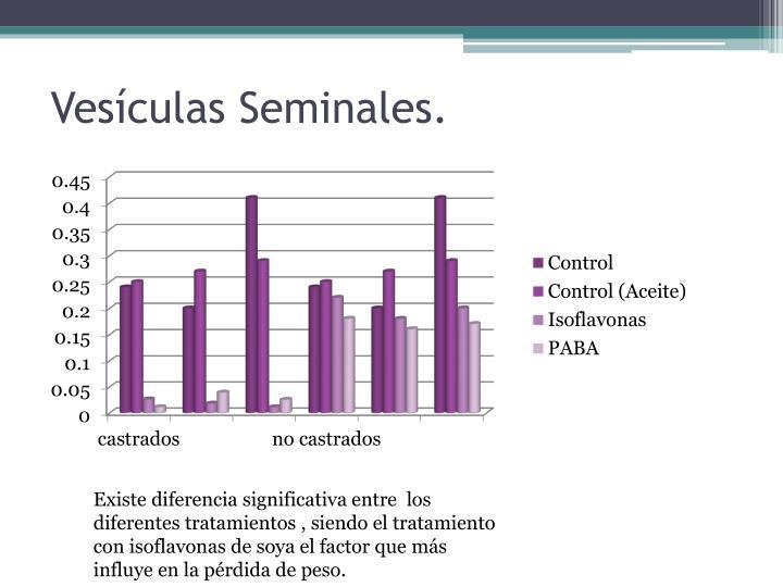 Vesículas Seminales.