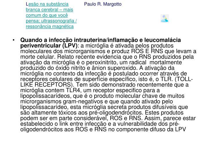 Quando a infecção intrauterina/inflamação e leucomalácia periventricular (LPV)