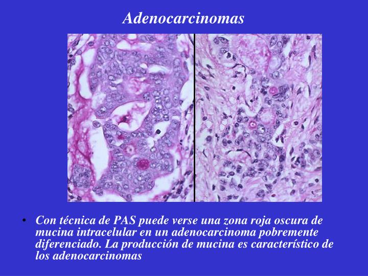 Adenocarcinomas