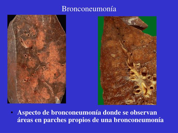 Bronconeumonía