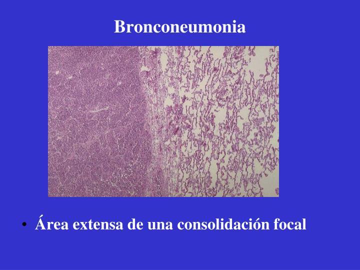 Bronconeumonia