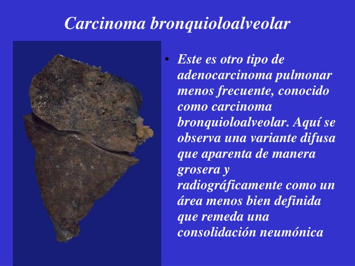 Carcinoma bronquioloalveolar