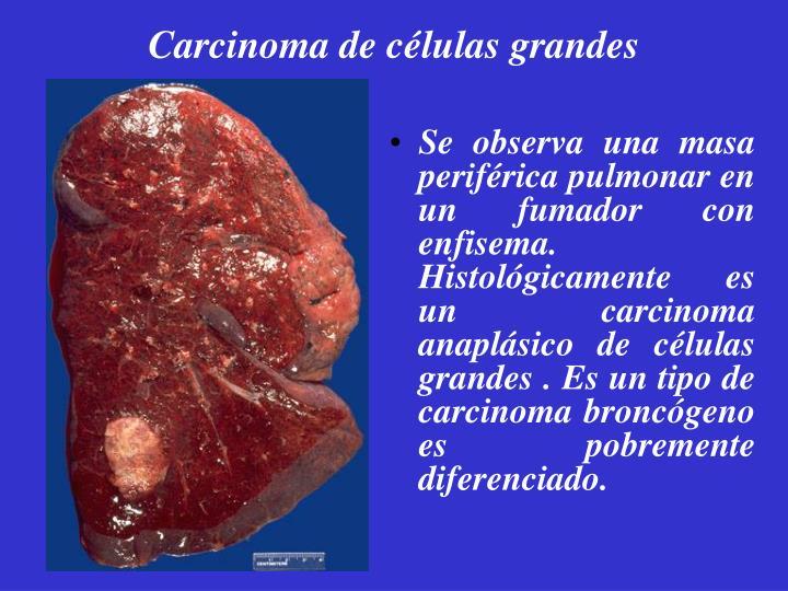 Carcinoma de células grandes