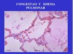 congestao y edema pulmonar