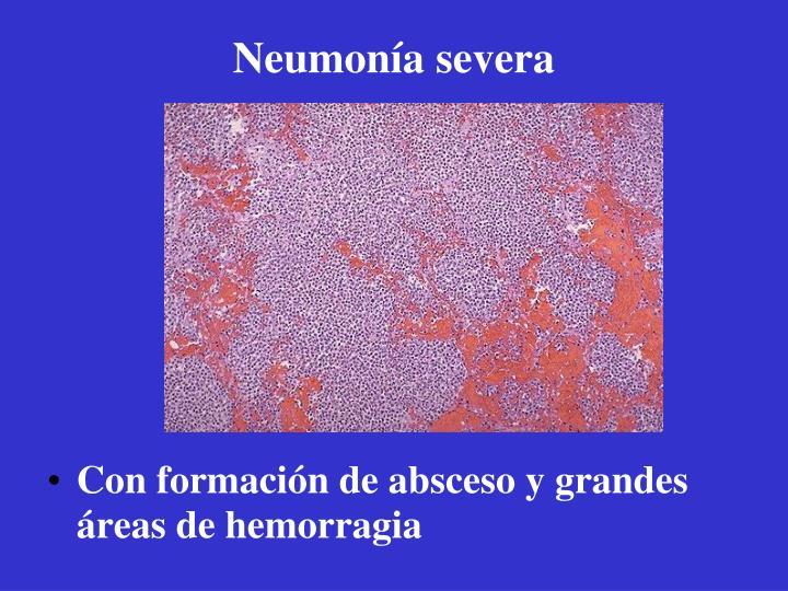 Neumonía severa