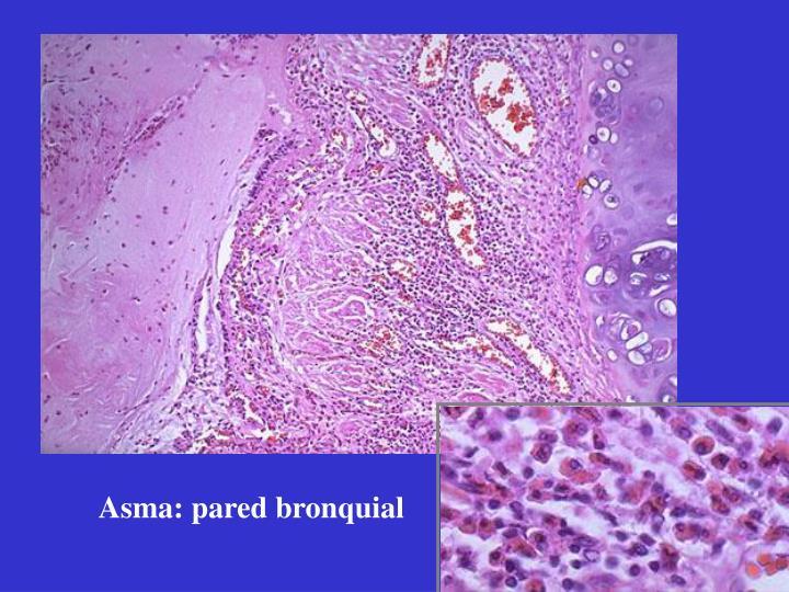 Asma: pared bronquial