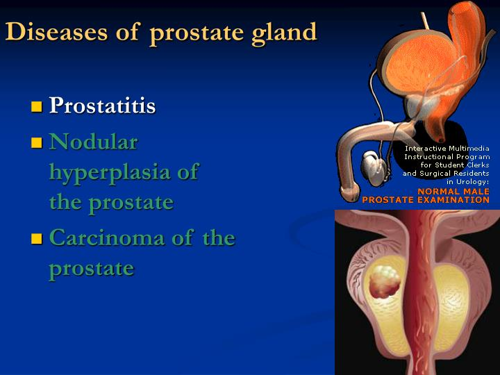 Diseases of prostate gland