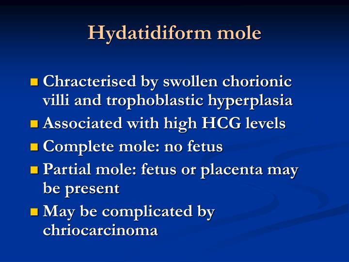 Hydatidiform mole