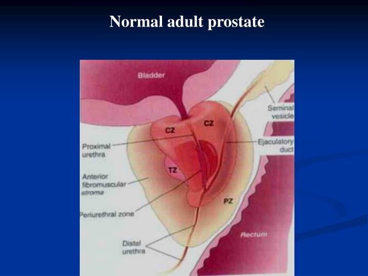 Normal adult prostate