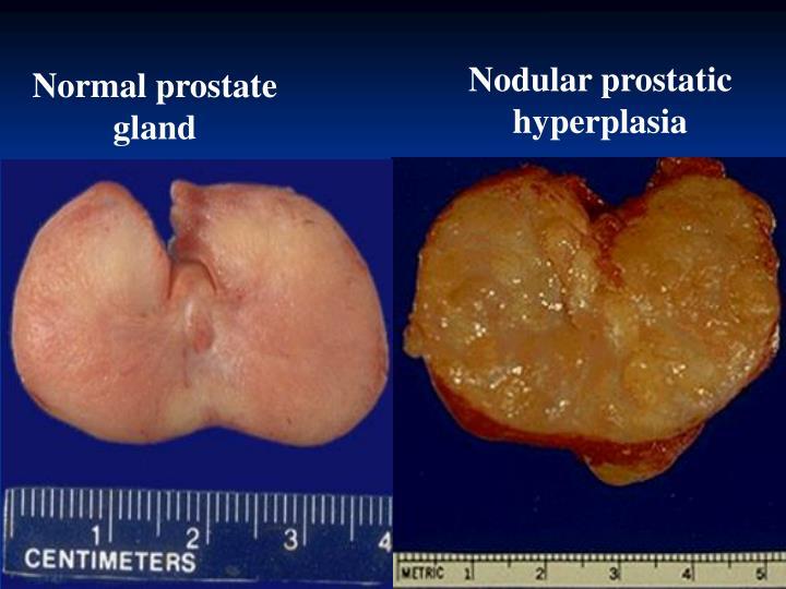 Nodular prostatic hyperplasia