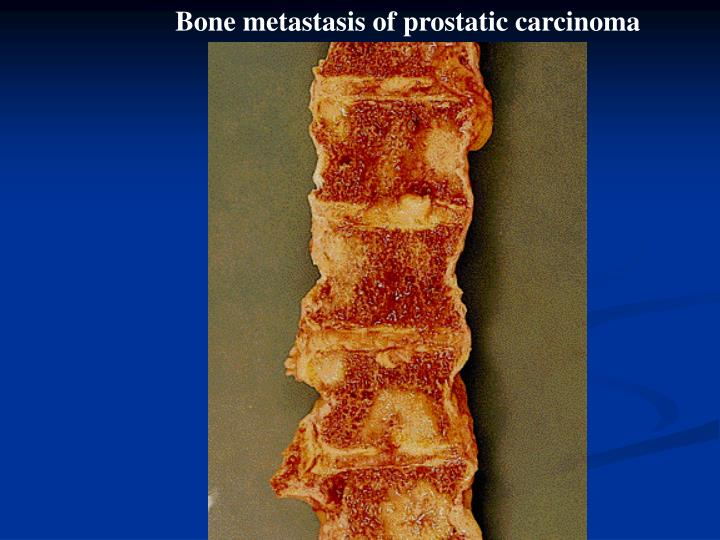 Bone metastasis of prostatic carcinoma