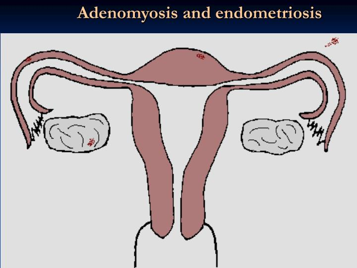 Adenomyosis and endometriosis