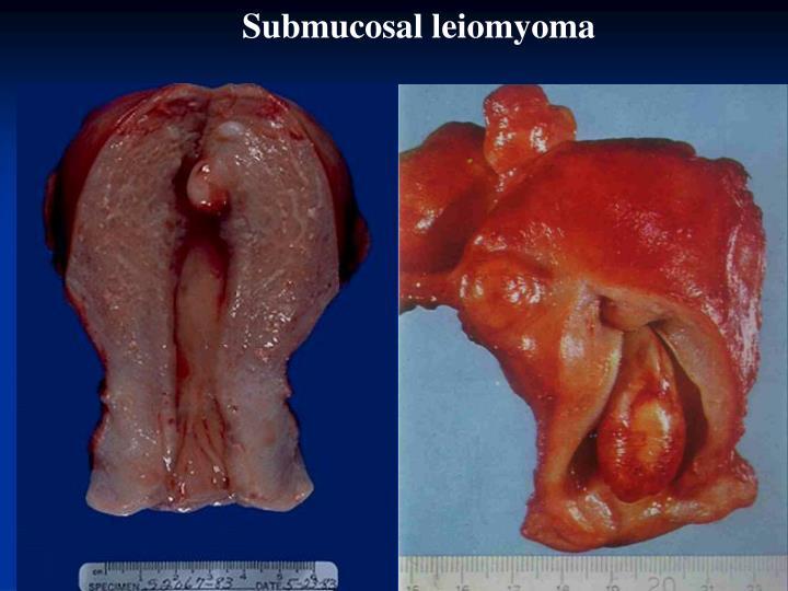 Submucosal leiomyoma