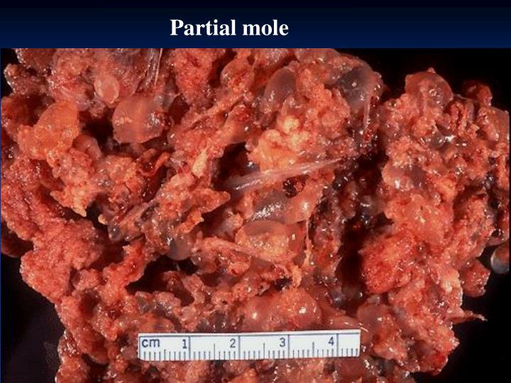 Partial mole