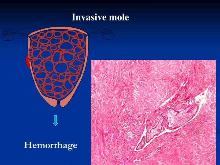 Invasive mole