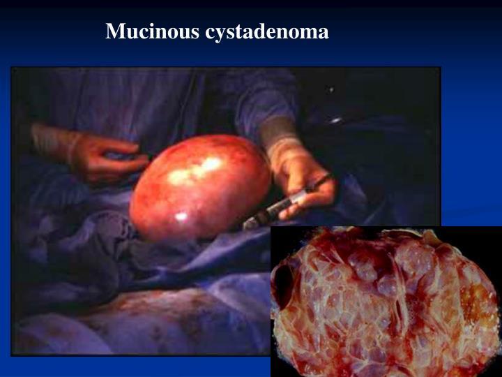 Mucinous cystadenoma