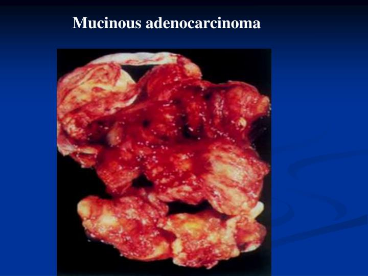 Mucinous adenocarcinoma