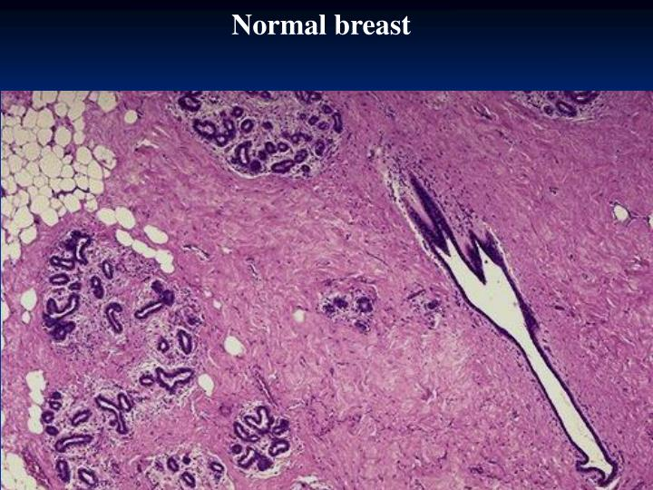 Normal breast