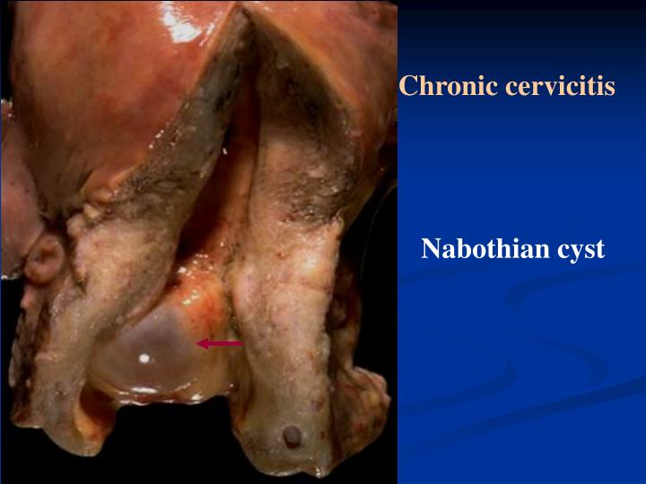 Chronic cervicitis