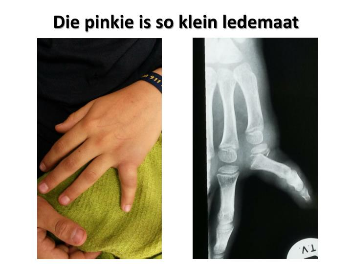 Die pinkie is so klein ledemaat