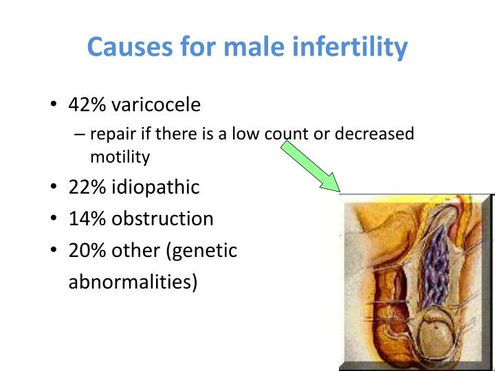 Causes for male infertility