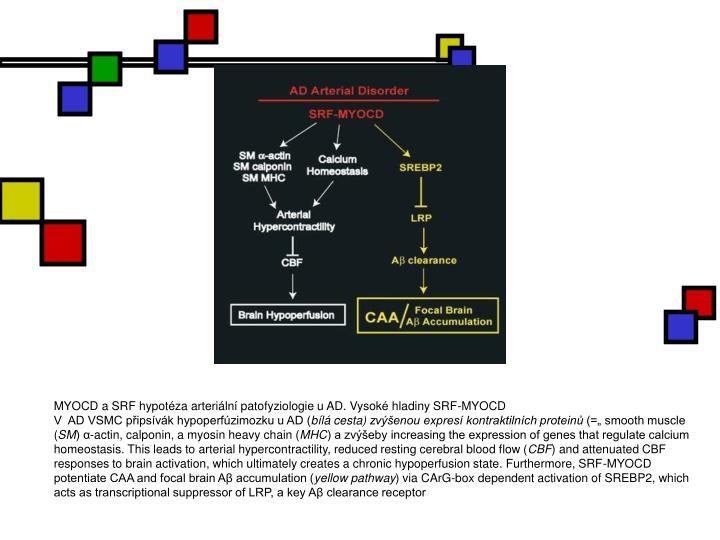 MYOCD a SRF hypotéza arteriální patofyziologie u AD. Vysoké hladiny SRF-MYOCD
