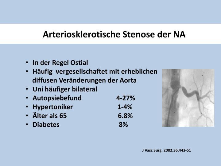 Arteriosklerotische Stenose der NA