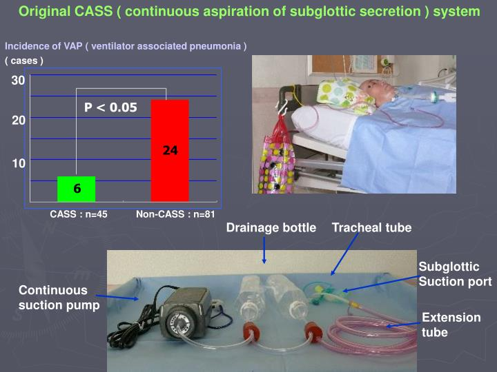 Original CASS ( continuous aspiration of subglottic secretion ) system