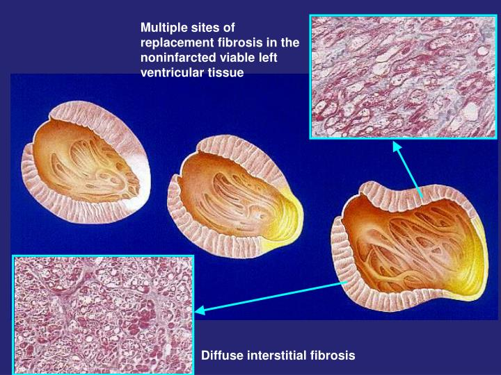 Multiple sites of replacement fibrosis in the noninfarcted viable left ventricular tissue