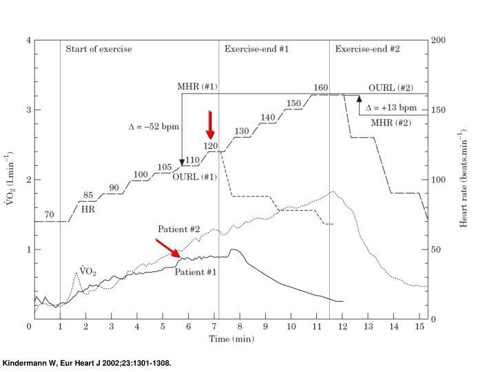 Kindermann W, Eur Heart J 2002;23:1301-1308.
