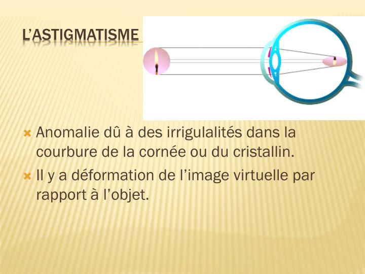 Anomalie dû à des irrigulalités dans la courbure de la cornée ou du cristallin.