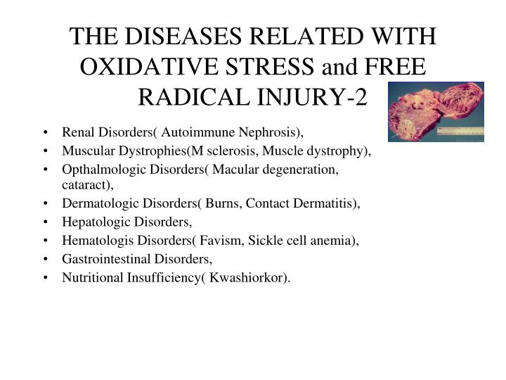 THE DISEASES RELATED WITH OXIDATIVE STRESS and FREE RADICAL INJURY-2