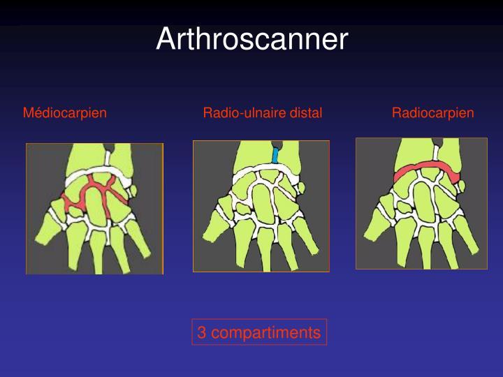Arthroscanner