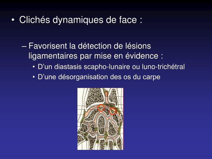 Clichés dynamiques de face :