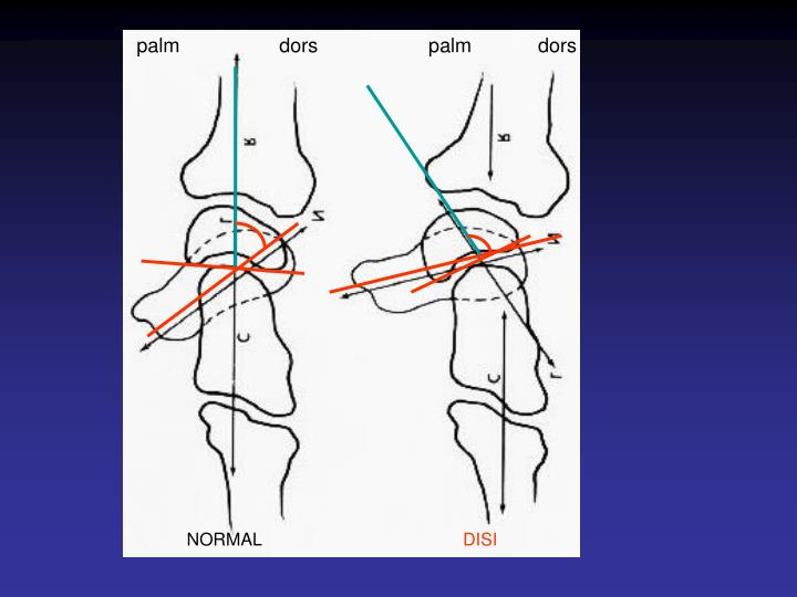 palm                  dors                    palm            dors