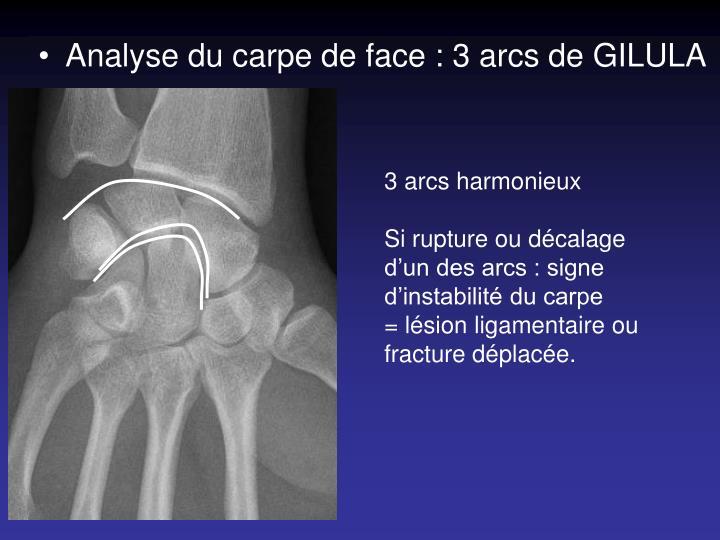 Analyse du carpe de face : 3 arcs de GILULA