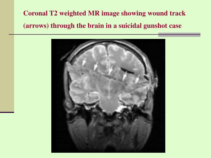 Coronal T2 weighted MR image showing wound track (arrows) through the brain in a suicidal gunshot case