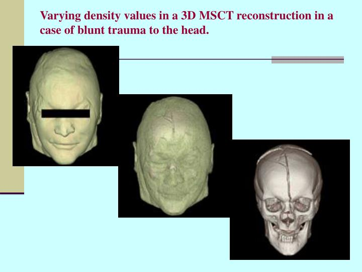Varying density values in a 3D MSCT reconstruction in a case of blunt trauma to the head.